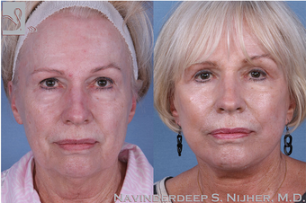 65-74 year old woman treated with Facelift before 3769513