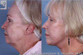 65-74 year old woman treated with Facelift after 3769513