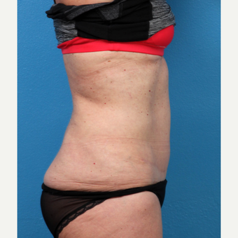 45-54 year old woman treated with Liposuction after 3208670