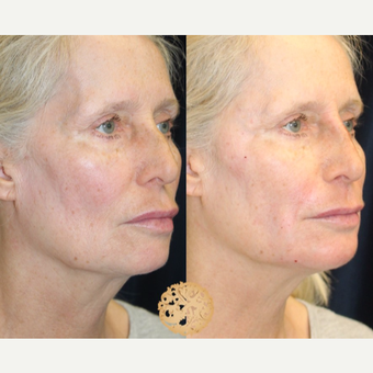 55-64 year old woman treated with Wrinkle Treatment after 2725137