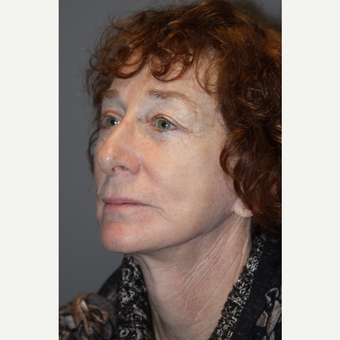 55-64 year old woman treated with Facelift after 3147934