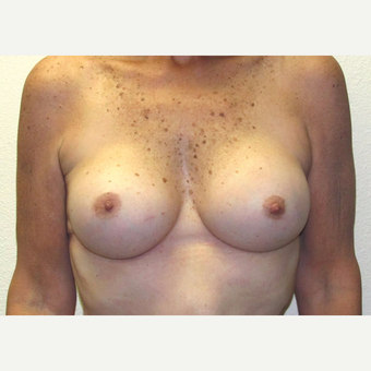 50 year-old woman treated with High profile, Silicone Gel Breast implants. after 3358497