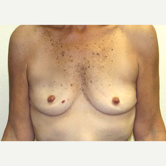 50 year-old woman treated with High profile, Silicone Gel Breast implants. before 3358497