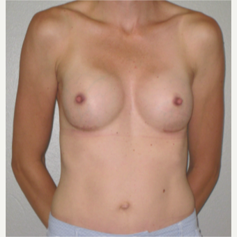 25-34 year old woman treated with Breast Implants after 3060403