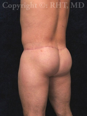 42 year-old male requesting butt lift. after 1014094
