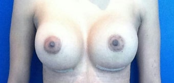 25-34 year old woman treated with Breast Implants after 1974272