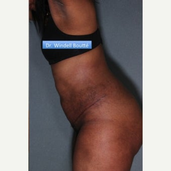 35-44 year old woman treated with SmartLipo Liposuction, Tummy Tuck, and Muscle Repair