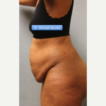 35-44 year old woman treated with SmartLipo Liposuction, Tummy Tuck, and Muscle Repair before 1651788