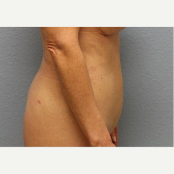 45-54 year old woman treated with Liposuction after 3726517