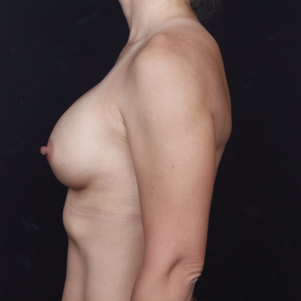 25-34 year old woman treated with Breast Augmentation after 3034726