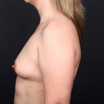 25-34 year old woman treated with Breast Augmentation before 3034726