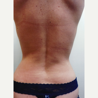 35-44 year old woman treated with Liposuction after 3481116