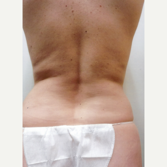 35-44 year old woman treated with Liposuction before 3481116