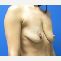 29 year old woman treated with Breast Augmentation with LIft before 3371296