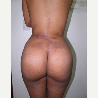 25-34 year old woman treated with Brazilian Butt Lift after 1832158