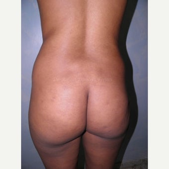 25-34 year old woman treated with Brazilian Butt Lift before 1832158