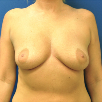 35-44 year old woman treated with Breast Implant Removal