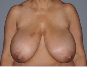 Breast reduction before 1352631