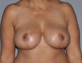 Breast reduction after 1352631