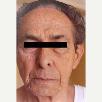 65-74 year old man treated with Chemical Peel before 3543684