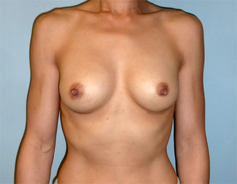 Fuller Breasts for 42 Year old Woman after 1371056
