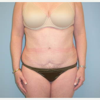 40 year old woman treated with Tummy Tuck after 3343727