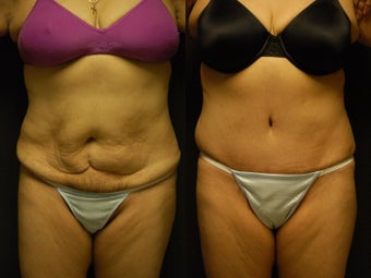 49 y/o patient 4 months post high-lateral tension abdominoplasty without use of drains before 1229180