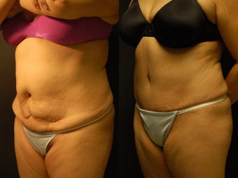 49 y/o patient 4 months post high-lateral tension abdominoplasty without use of drains after 1229180
