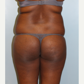 25-34 year old woman treated with Brazilian Butt Lift before 3401322