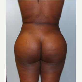 25-34 year old woman treated with Brazilian Butt Lift after 3401322
