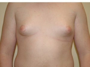 Gynecomastia before 1222344