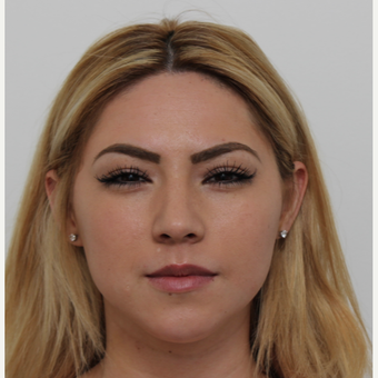 18-24 year old woman treated with Rhinoplasty before 3371531