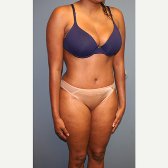 25-34 year old woman treated with Tummy Tuck after 3559025