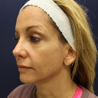 45-54 year old woman treated with Mini Face Lift before 3731573