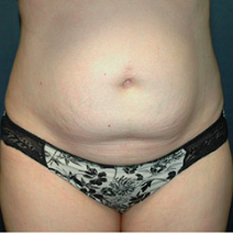 35 year old woman treated with Tummy Tuck before 3578390