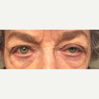 65-74 year old woman treated with Ptosis Surgery