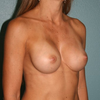 35-44 year old woman treated with Breast Implant Revision after 3437529