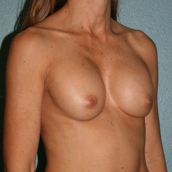 35-44 year old woman treated with Breast Implant Revision before 3437529