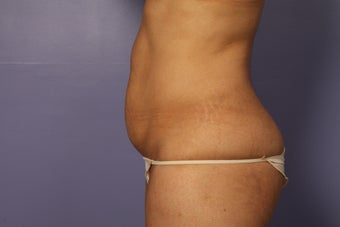 Tummy tuck and liposuction before 687605