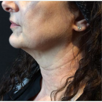 55-64 year old woman treated with Kybella after 3669959