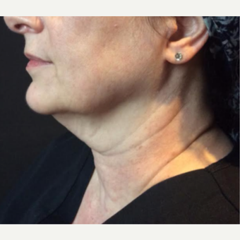 55-64 year old woman treated with Kybella before 3669959