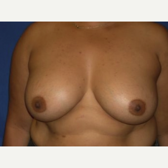 35-44 year old woman treated with Breast Augmentation after 3220133