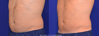CoolSculpting Abdomen and Flanks before 1412891