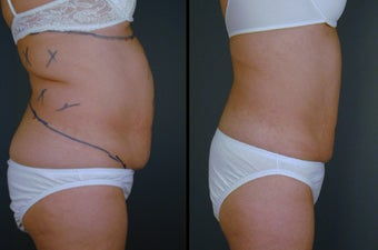 Pure Tumescent Liposuction before 996369
