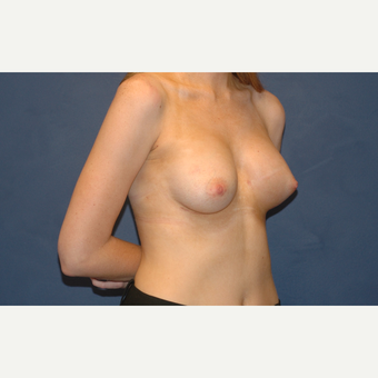 24 year old woman treated with Breast Augmentation for severe breast asymmetry after 3201058