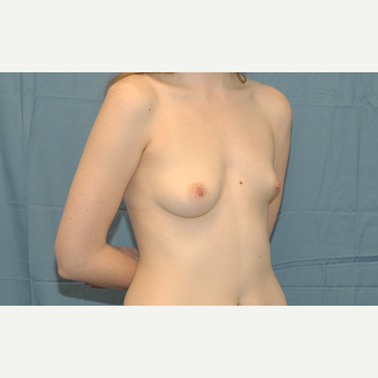 24 year old woman treated with Breast Augmentation for severe breast asymmetry before 3201058
