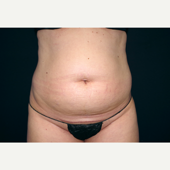 25-34 year old woman treated with Liposuction before 3055055