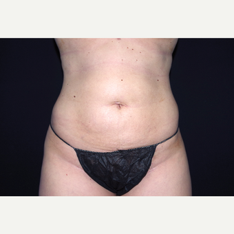 25-34 year old woman treated with Liposuction after 3055055