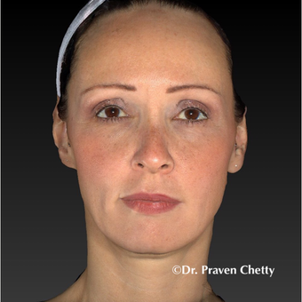 45-54 year old woman treated with Non Surgical Face Lift after 3449319