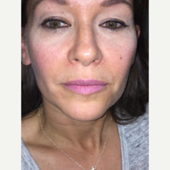 45-54 year old woman treated with Lip Augmentation after 3451834